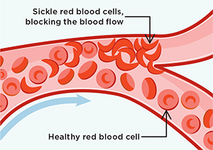 Sickle Cell Disease Illutration