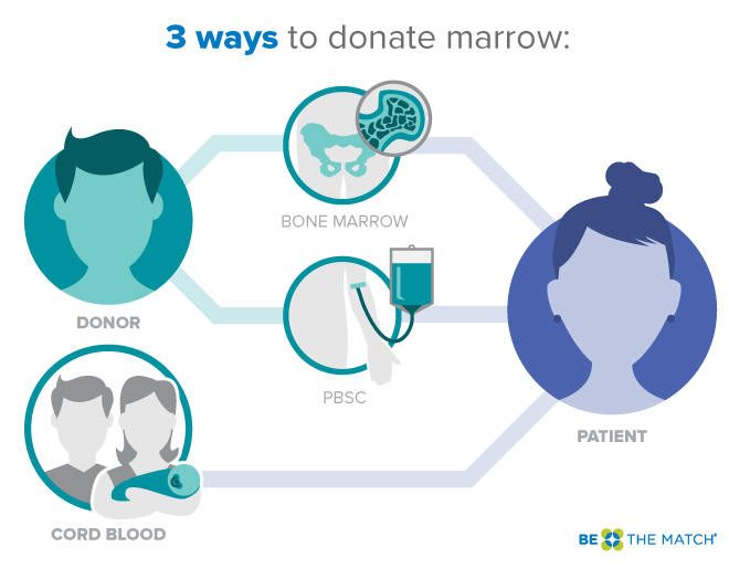 Three ways to donate bone marrow infographic