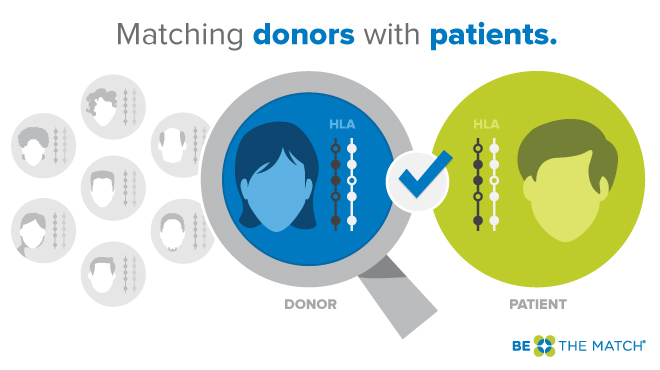 Matching donors with patients